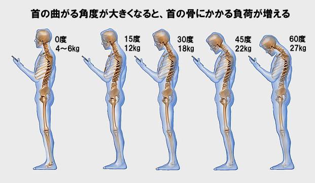 頚性神経筋症候群(首こり病)の特徴と原因、対策